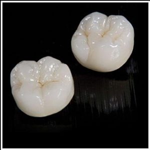 CAD_Cam_Zirconia_Crown_and_Bridges_All_Ceramic_Crown