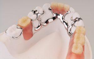 Proteza sa kukicama koje obuhvataju postojeće zube (na modelu)