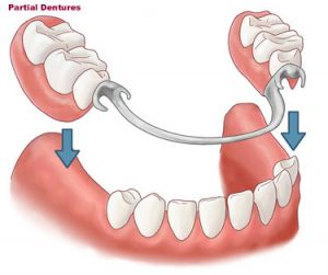 dentures-partial1